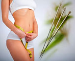 acupuncture-lose-weight-ALT_SMALL_IMG